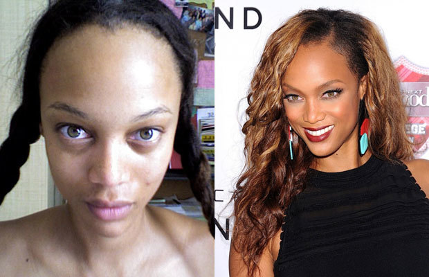 Celebs Who Will Never Be Beautiful Again | TheTalko